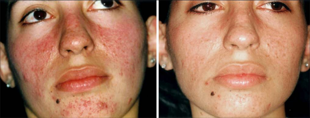 Acne Laser Therapy Acne Treament Wandsworth South West