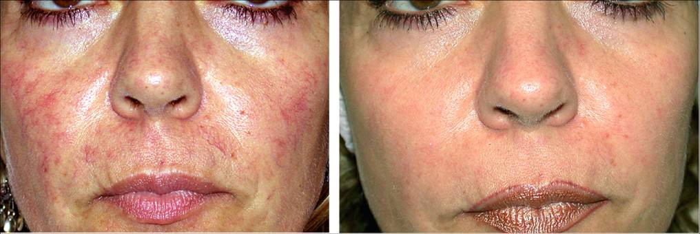 Treating facial redness