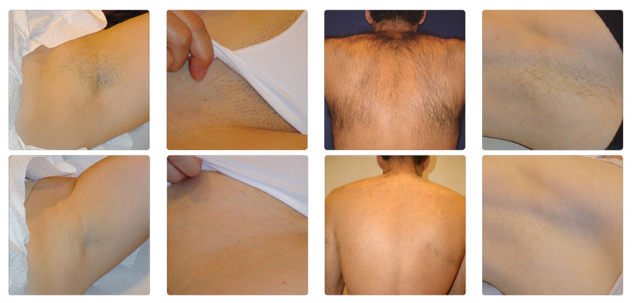 Laser Hair Removal Laser Treatment Wandsworth London Sw1